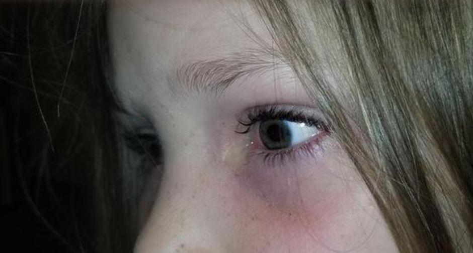 Djevojčicu je užasno boljelo oko, a ono što su pronašli šokiralo je mnoge!