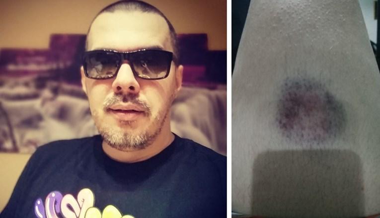 """Pjevač tvrdi da ga je policija u Neumu pretukla zbog pjesme: """"Bosanac"""""""