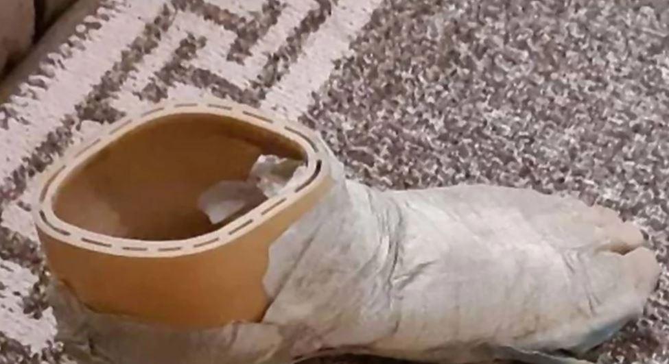 Prekrasna postratna priča: Vojnik Hrvat poslao Srbinu protezu stopala