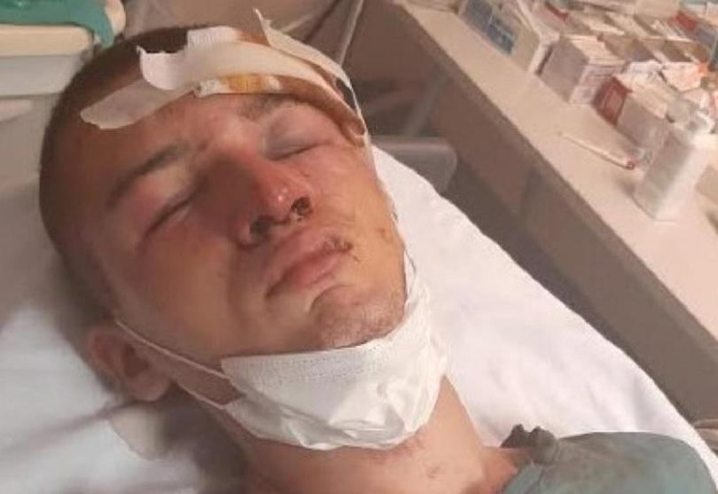 Jezivi horor u Mostaru: Iz čista mira brutalno pretukli mladića, bacili ga u provaliju i urinirali po njemu