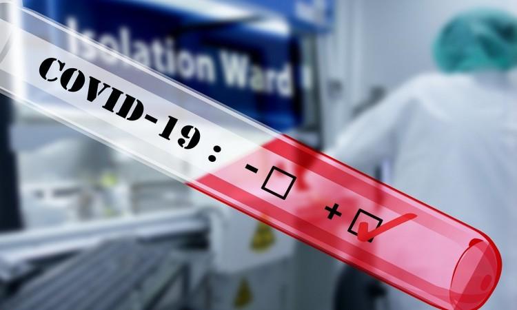 U Hrvatskoj 3308 novozaraženih koronavirusom, 49 umrlih